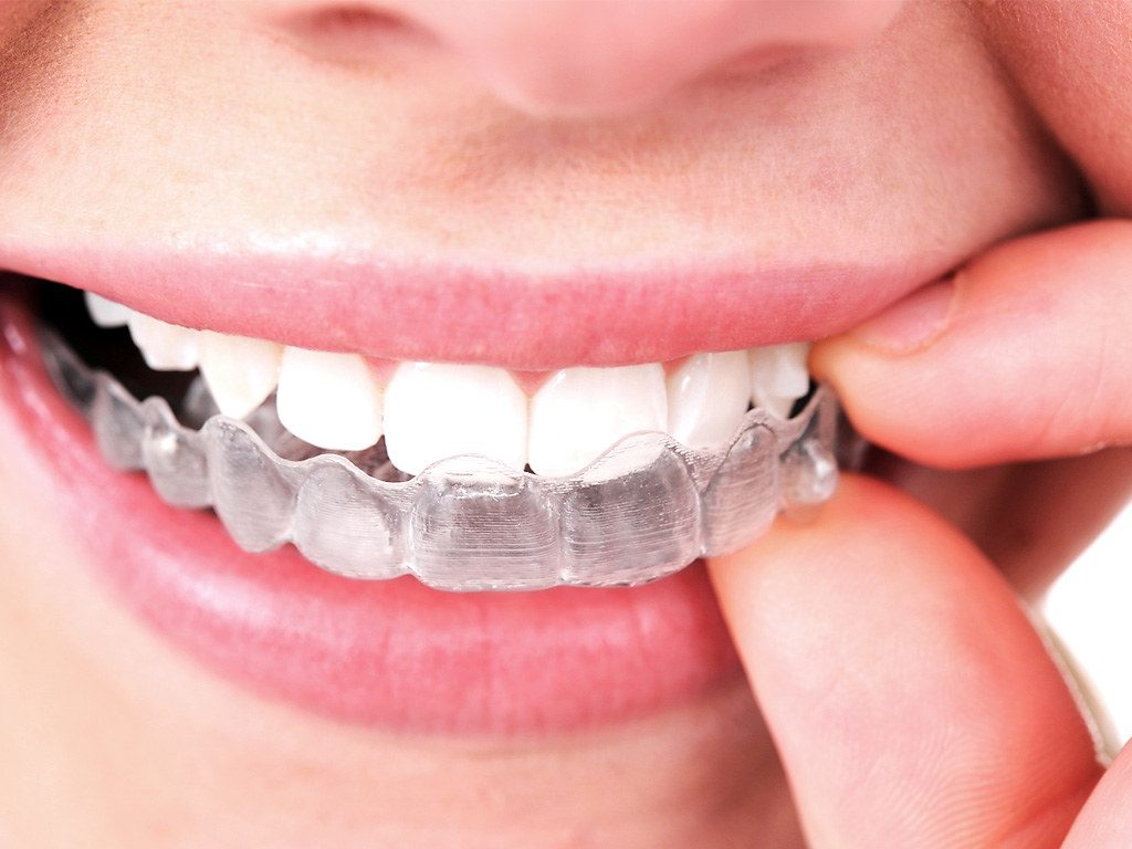 Blog at Coppice view Dental Care in Harrogate